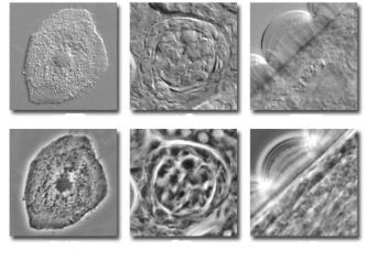 相衬显微镜简介――原理+结构+应用